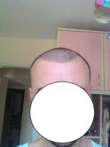 hair-transplant-line (8)