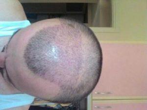 hair-transplant-line (9)
