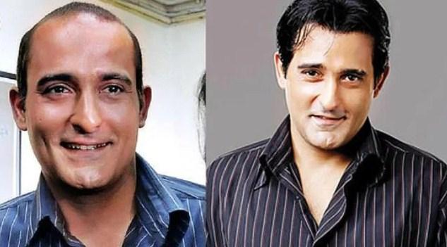 akshaye-khanna-hair-transplant