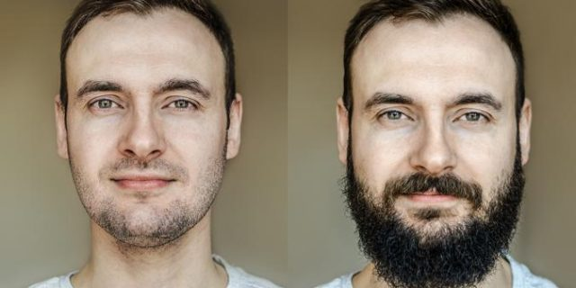 facial-beard-transplants