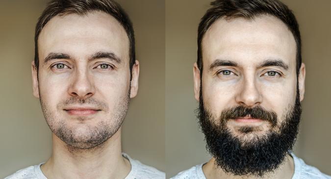 facial-beard-transplants