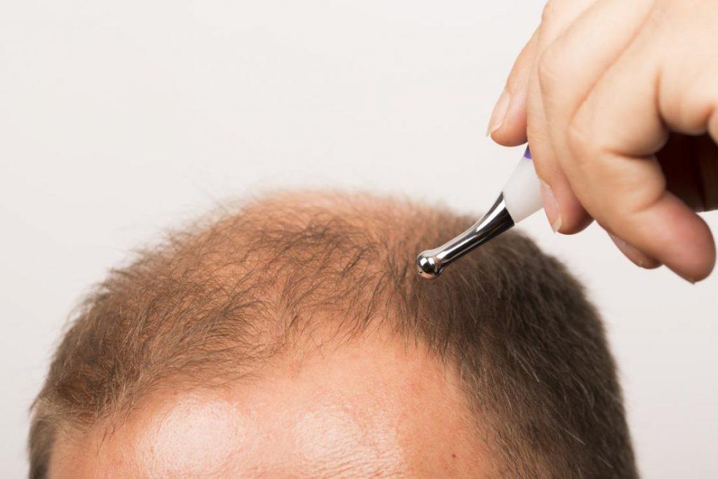 shock hair loss