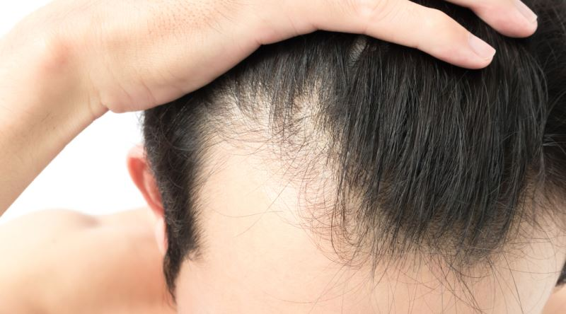 what is-shock-hair-loss