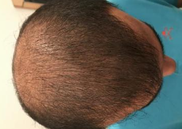 4000-grafts-hair-transplant-result-10