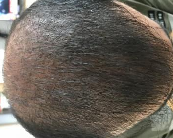 4000-grafts-hair-transplant-result-11