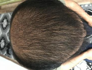 4000-grafts-hair-transplant-result-13