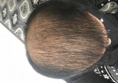 4000-grafts-hair-transplant-result-15