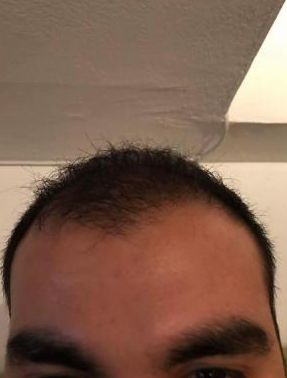 4000-grafts-hair-transplant-result-16
