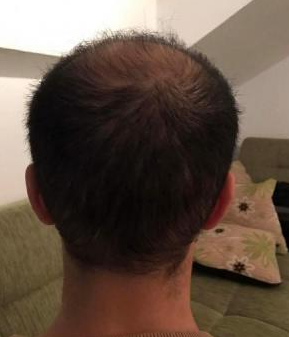 4000-grafts-hair-transplant-result-18
