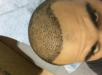 4000-grafts-hair-transplant-result-3