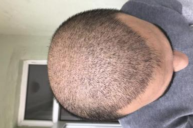 4000-grafts-hair-transplant-result-4