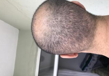 4000-grafts-hair-transplant-result-5