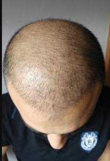 4000-grafts-hair-transplant-result-6