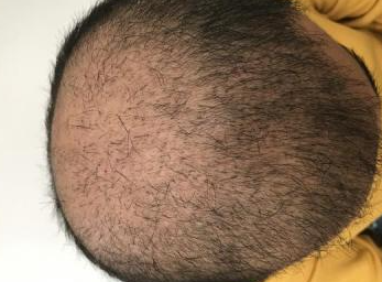 4000-grafts-hair-transplant-result-7