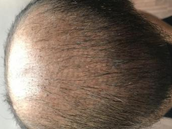 4000-grafts-hair-transplant-result-8