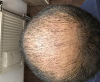 4000-grafts-hair-transplant-result-9