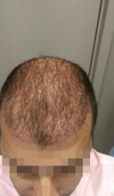 beard-hairtransplant