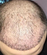 aisha-hair-transplant-4500-grafts